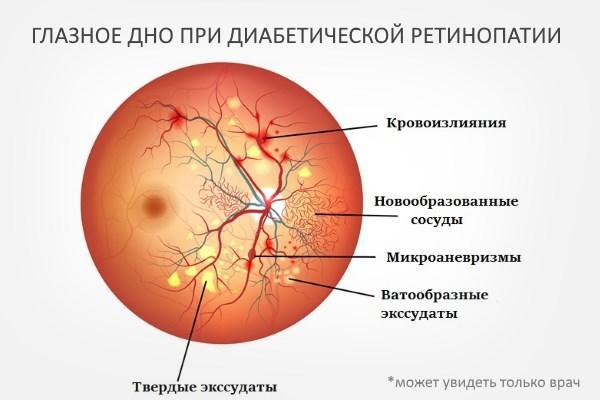 Очне дно при ретінопатії