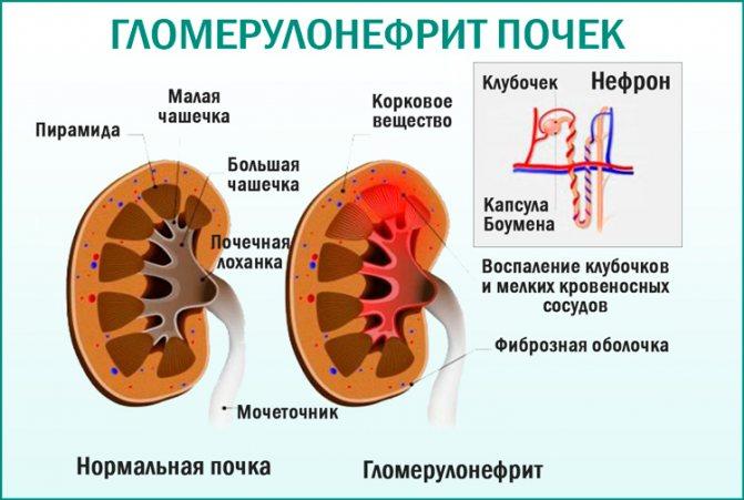 Гломерулонефрит. Урологія, нефрологія