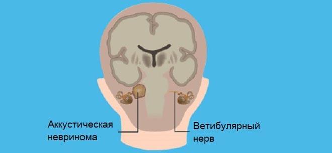 головні болі