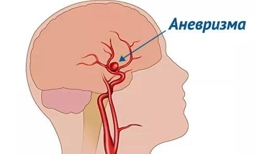 Набагато рідше зірочки формуються на внутрішніх органах. Небезпека їх полягає в тому, що вони поєднуються з аневризмами