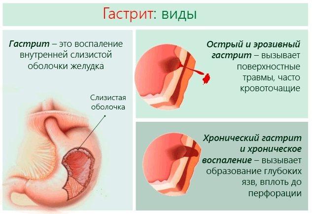 Гормональні таблетки для жінок. Які краще в період менопаузи, при клімаксі, ендометріозі, гормональний збій