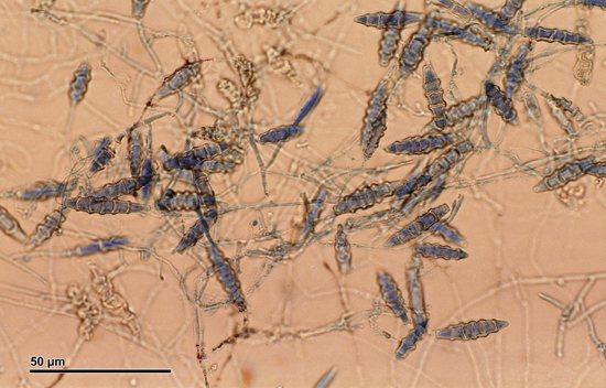 грибки microsporum