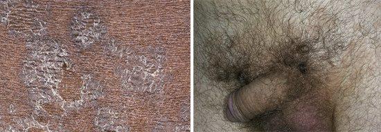 грибкове ураження шкіри