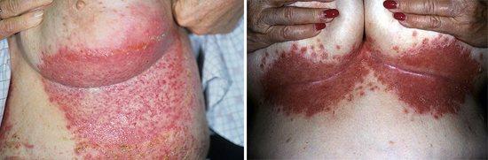 грибкові захворювання
