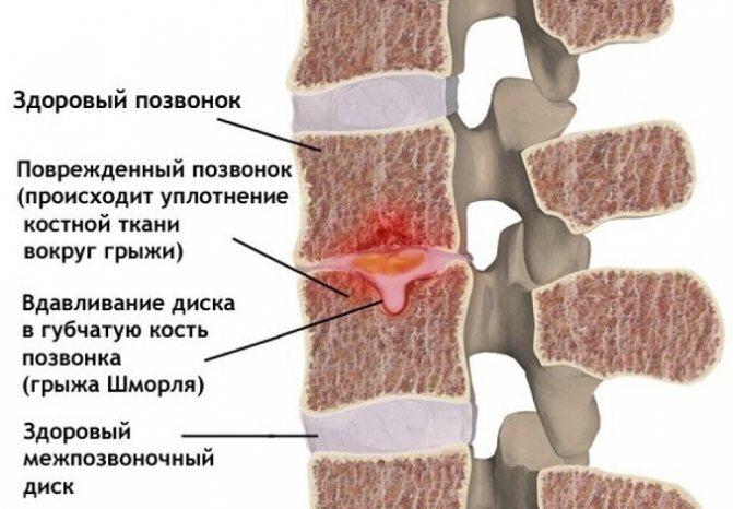 Грижа Шморля шийного відділу хребта симптоми і лікування
