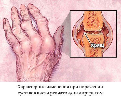 характерні зміни при ураженні суглобів кисті на ревматоїдний артрит