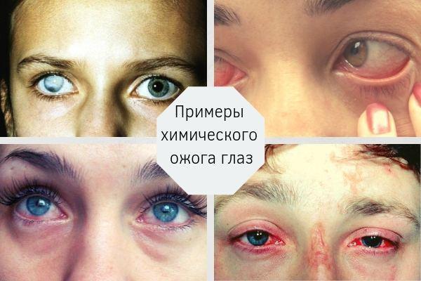 Хімічний опік очей