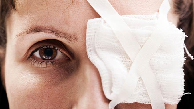 хімічний опік рогівки ока