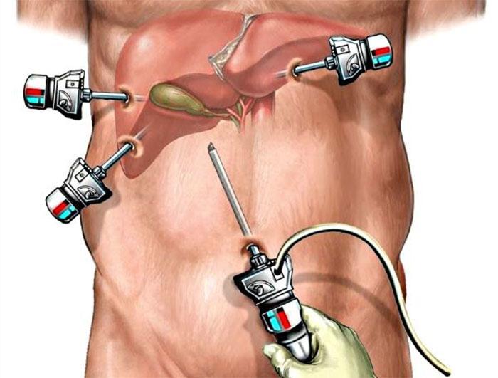 Хірургічне видалення жовчних каменів