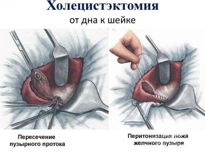 Холецистектомія при гострому холециститі