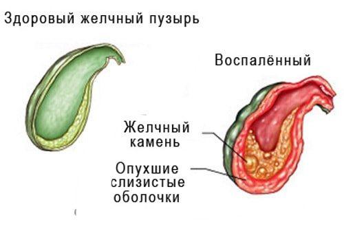 Холецистит як причина болю в правому підребер'ї