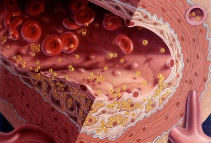 холестерин ЛПВЩ - холестерол ЛПНЩ - норма в крові у жінок