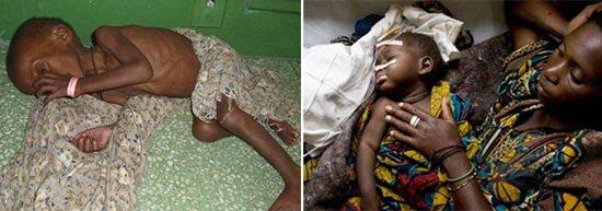 хронічна діарея Африка