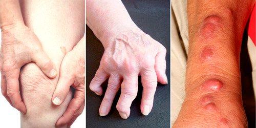 хронічна форма Бруцельоз: артрит суглобів и міозіті