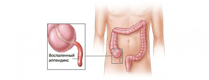 хронічній апендицит