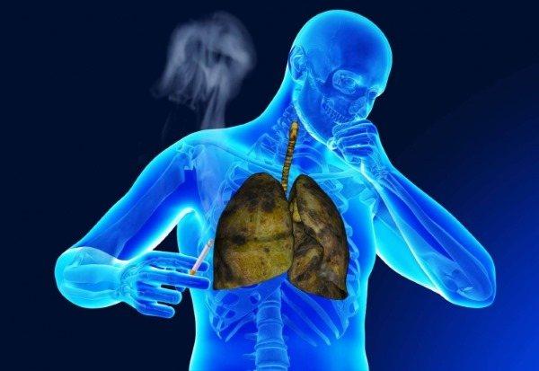 Хронічний бронхіт. Симптоми і лікування у дорослих. Препарати, ефективні народні засоби в домашніх умовах