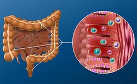 хронічний дисбактеріоз