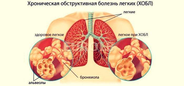 Хронічний обструктивний бронхіт