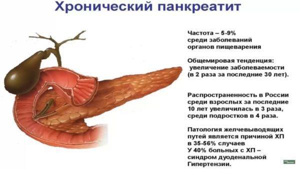 Хронічний панкреатит