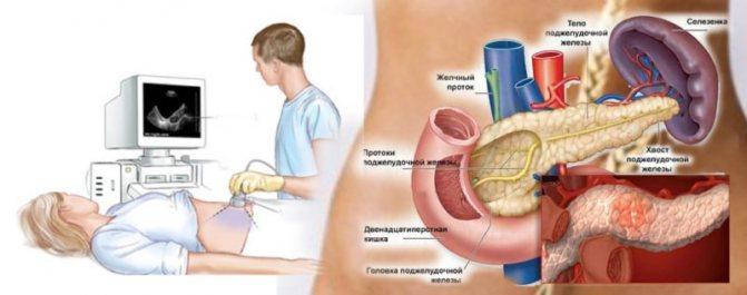 хронічній панкреатит