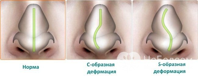 Хронічний риніт може бути наслідком викривлення носової перегородки