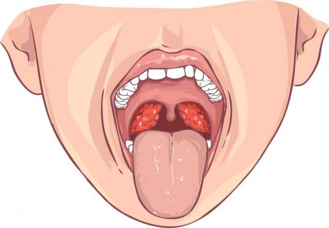 Хронічний тонзиліт