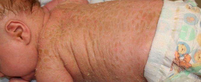 іхтіоз шкіри