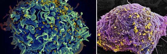 імунні Клітини вич
