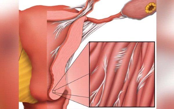 Індометацин свічки. Інструкція по застосуванню в гінекології, при вагітності, після операції. Ціна, аналоги