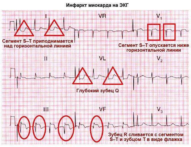 інфаркт міокарда на ЕКГ