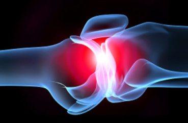 Інфекційний артрит, вірусний і септичний: симптоми і лікування ...
