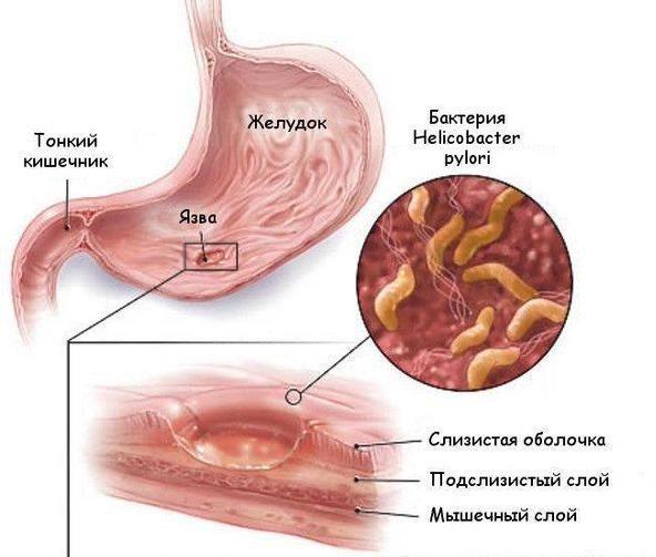 Інфікування бактерією Хелікобактер пілорі