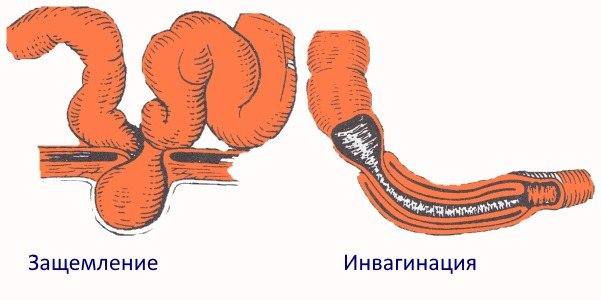 Інвагінація и защемлення кишки