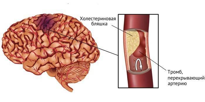 Ішемічний інсульт головного мозку