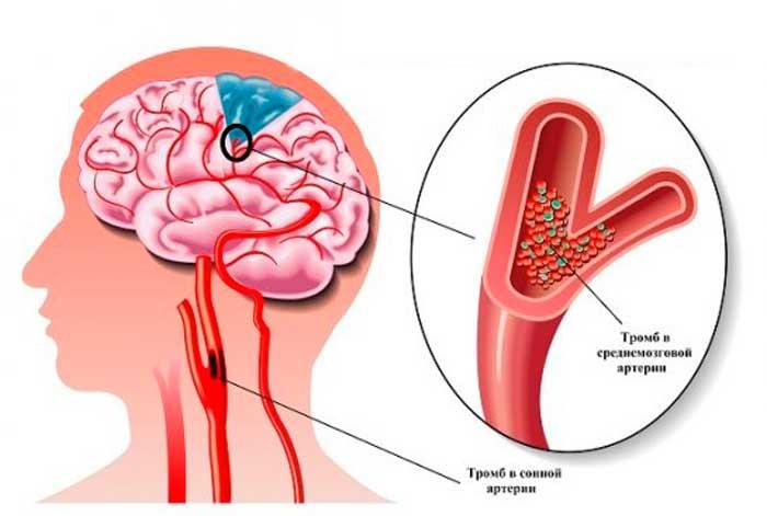 Ішемія головного мозком: симптоми, причини, лікування