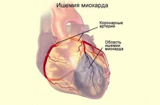 ішемію серцево м'яза