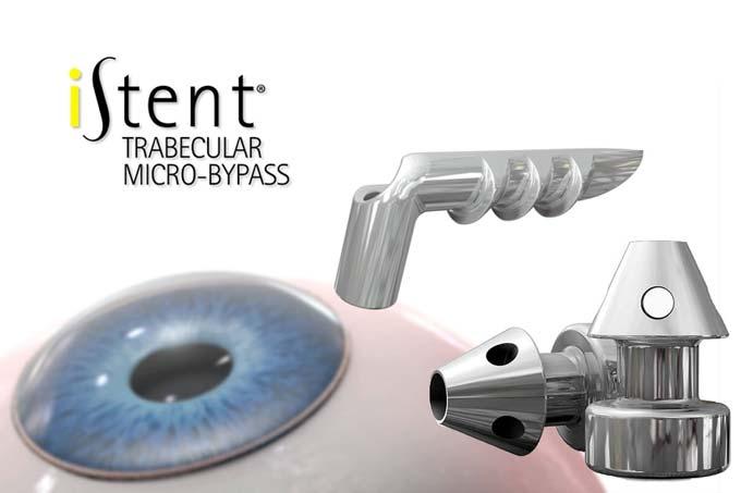 iStent метод лікування глаукоми