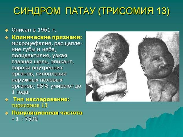 Зображення №1, Синдром Патау - клініка Альтравіта