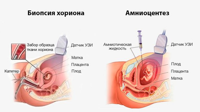 Зображення №4, Синдром Патау - клініка Альтравіта