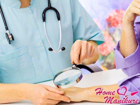 вивчення панариция у дерматолога