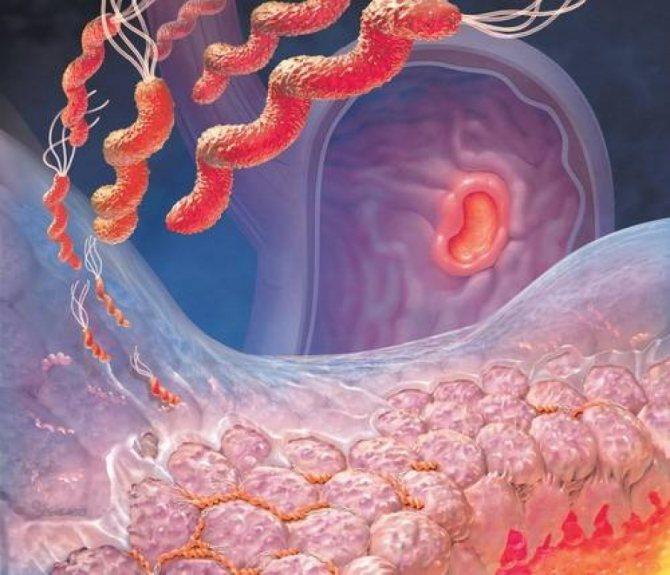 Віразка слізової стінкі шлунка