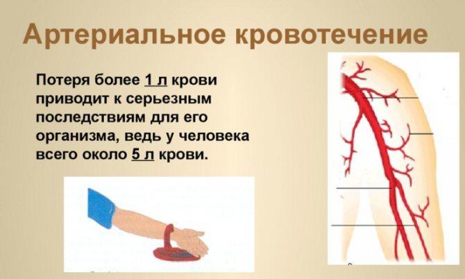 Як діяти при великих крововтратах