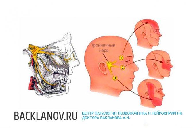 Як довго лікується невралгія лицьового нерва