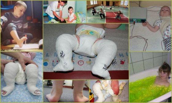 Як виправити клішоногість у дітей Способи лікування