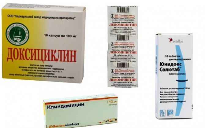 Як лікувати акне на обличчі - препарати, схема лікування, методи