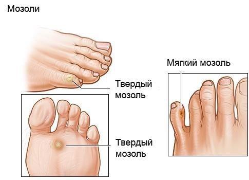 Як лікувати мозолі на ногах, руках, пальцях, як позбутися від стрижневий мозолі в домашніх умовах