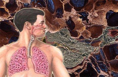 Як лікувати пневмофиброз легких