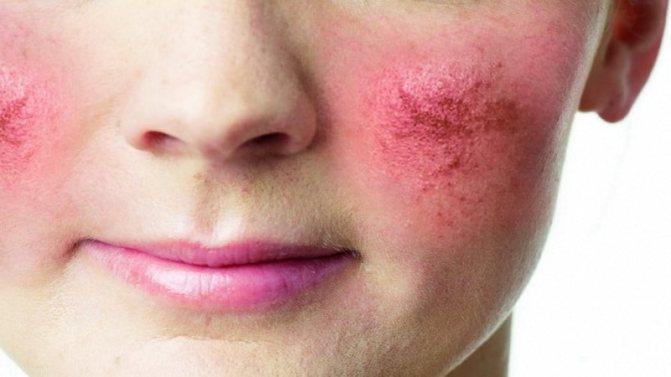 як лікуваті розацеа на обліччі