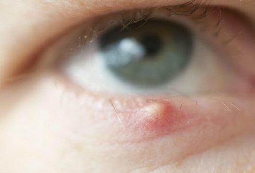 Як лікувати ячмінь?