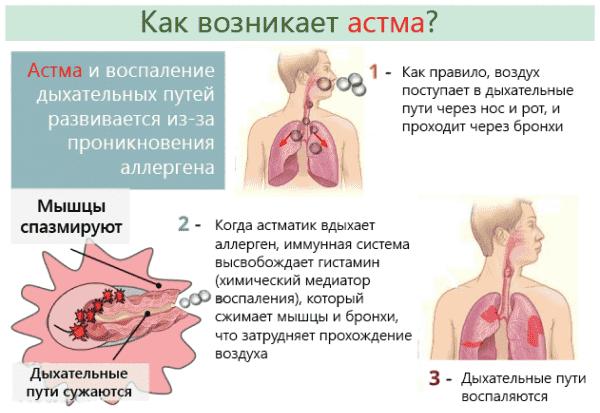 Як починається астма: симптоми у дорослих